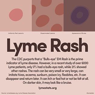 Lyme.Rash316x316